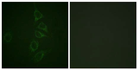 Immunocytochemistry/ Immunofluorescence - Anti-Calmodulin (phospho T79 + S81) antibody (ab61001)