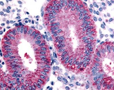 Immunohistochemistry (Formalin/PFA-fixed paraffin-embedded sections) - Anti-DKK1 antibody (ab61034)
