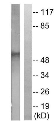 Western blot - Anti-Dematin (phospho S403) antibody (ab61044)