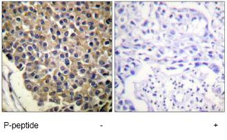 Immunohistochemistry (Formalin/PFA-fixed paraffin-embedded sections) - Anti-CXCR2 (phospho S347) antibody (ab61100)