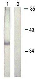 Western blot - Anti-Rad51 (phospho Y315) antibody (ab61111)