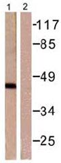 Western blot - Anti-Aurora A antibody (ab61114)