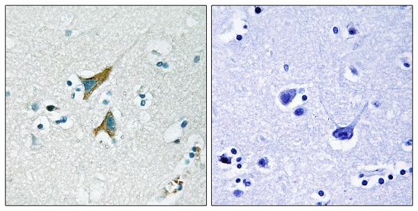 Immunohistochemistry (Formalin/PFA-fixed paraffin-embedded sections) - Anti-DUSP1 antibody (ab61201)