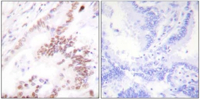 Immunohistochemistry (Formalin/PFA-fixed paraffin-embedded sections) - Anti-KAT3B / p300 antibody (ab61217)