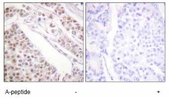 Immunohistochemistry (Formalin/PFA-fixed paraffin-embedded sections) - Anti-Histone H2B (acetyl K12) antibody (ab61228)
