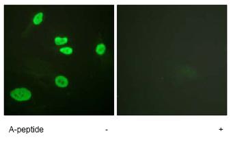 Immunocytochemistry/ Immunofluorescence - Anti-Histone H3 (acetyl K9) antibody (ab61231)