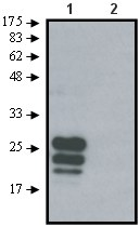 Western blot - Anti-Tetraspanin 9 antibody (ab61261)