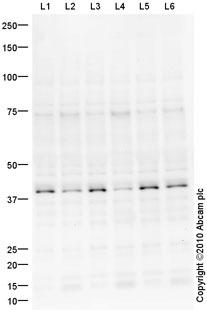 Western blot - Anti-DBX1 antibody (ab61488)