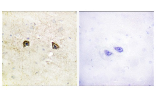Immunohistochemistry (Formalin/PFA-fixed paraffin-embedded sections) - Anti-Eph receptor B1 + Eph receptor B2 antibody (ab61765)