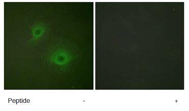 Immunocytochemistry/ Immunofluorescence - Anti-Eph receptor B1 + Eph receptor B2 antibody (ab61765)