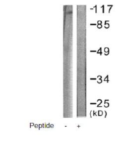 Western blot - Anti-Eph receptor B1 + Eph receptor B2 antibody (ab61765)