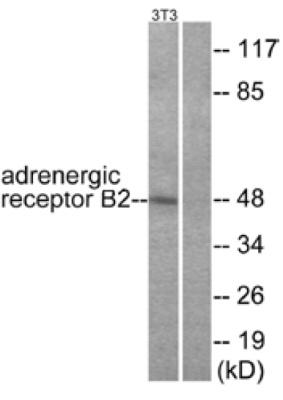 Western blot - Anti-beta 2 Adrenergic Receptor antibody (ab61778)