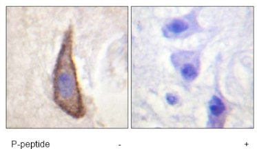 Immunohistochemistry (Formalin/PFA-fixed paraffin-embedded sections) - Anti-CD226 (phospho S329) antibody (ab61790)