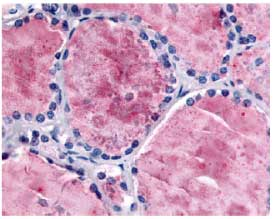 Immunohistochemistry (Formalin/PFA-fixed paraffin-embedded sections) - Anti-PDE8B antibody (ab61817)