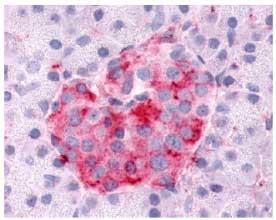 Immunohistochemistry (Formalin/PFA-fixed paraffin-embedded sections) - Anti-SGK3 antibody (ab61818)
