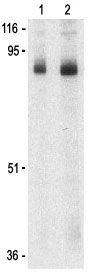 Western blot - Stromal interaction molecule 1 antibody (ab62031)