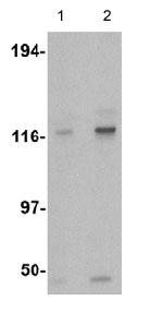 Western blot - Anti-Kinesin 5 A + B + C antibody (ab62105)