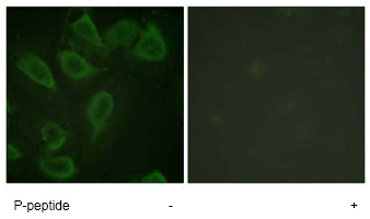 Immunocytochemistry/ Immunofluorescence - Anti-CD31 (phospho Y713) antibody (ab62169)
