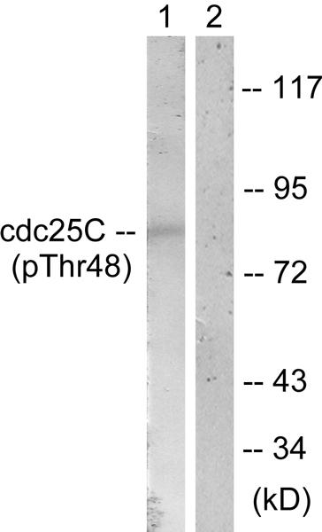 Western blot - Anti-Cdc25C (phospho T48) antibody (ab62191)
