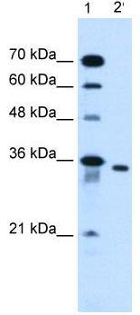 Western blot - Anti-SLC25A32 antibody (ab62192)