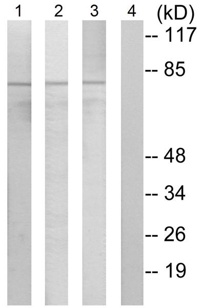 Western blot - Anti-PKC delta (phospho Y313) antibody (ab62202)