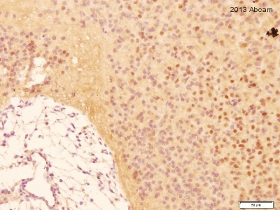 Immunohistochemistry (Formalin/PFA-fixed paraffin-embedded sections) - Anti-COX2 / Cyclooxygenase 2 antibody [EP1978Y] (ab62331)