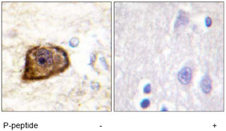 Immunohistochemistry (Formalin/PFA-fixed paraffin-embedded sections) - Anti-PDGF Receptor beta (phospho Y1021) antibody (ab62437)