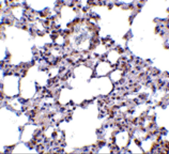 Immunohistochemistry (Formalin/PFA-fixed paraffin-embedded sections) - Anti-TRPC6 antibody (ab62461)