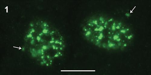 Immunocytochemistry/ Immunofluorescence - Anti-CRMP2 (phospho T514) antibody (ab62478)