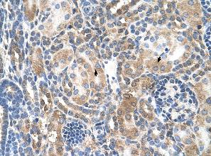 Immunohistochemistry (Formalin/PFA-fixed paraffin-embedded sections) - Anti-Mineralocorticoid Receptor antibody (ab62532)