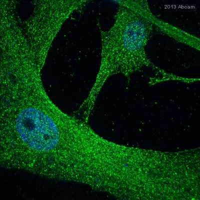 Immunocytochemistry/ Immunofluorescence - Anti-Beclin 1 antibody (ab62557)