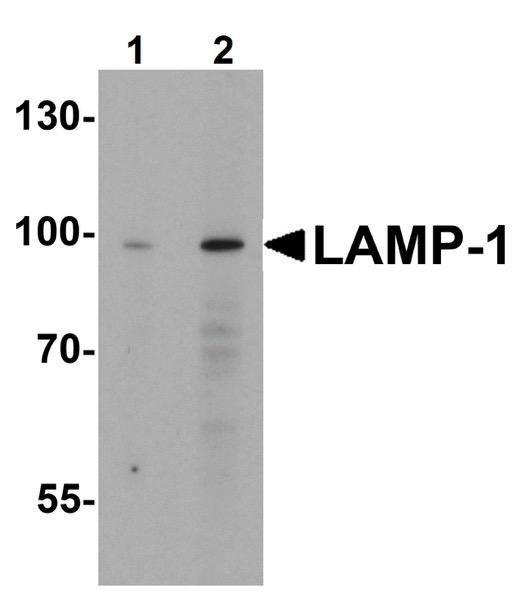 Western blot - Anti-LAMP1 antibody (ab62562)