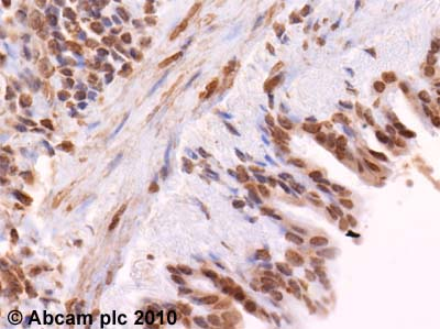 Immunohistochemistry (Formalin/PFA-fixed paraffin-embedded sections) - Anti-SOCS1 antibody (ab62584)