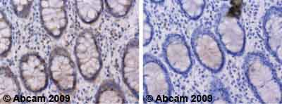 Immunohistochemistry (Formalin/PFA-fixed paraffin-embedded sections) - Anti-NFATC4 antibody (ab62613)