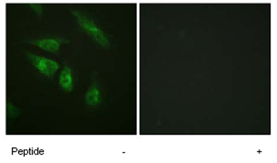 Immunocytochemistry/ Immunofluorescence - Anti-NFATC4 antibody (ab62613)