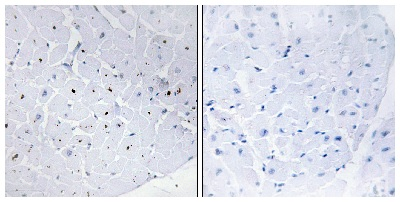 Immunohistochemistry (Formalin/PFA-fixed paraffin-embedded sections) - Anti-Cyclin E1 antibody (ab62624)