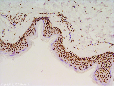 Immunohistochemistry (Formalin/PFA-fixed paraffin-embedded sections) - Anti-Histone H3 antibody (ab62706)