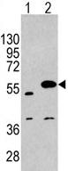 Western blot - Anti-SPRED1 antibody (ab62911)