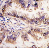 Immunohistochemistry (Formalin/PFA-fixed paraffin-embedded sections) - Anti-STK39 antibody (ab62913)