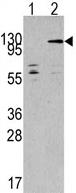 Western blot - Anti-TAOK3 antibody (ab62915)