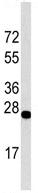 Western blot - Anti-DDIT4 antibody (ab63059)