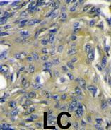 Immunohistochemistry (Formalin/PFA-fixed paraffin-embedded sections) - Anti-VEGFD antibody (ab63068)