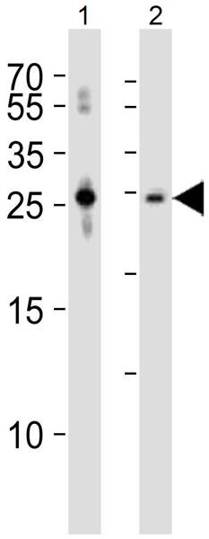 Western blot - Anti-Sclerostin antibody (ab63097)