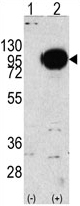 Western blot - Anti-PYGM antibody (ab63158)