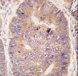 Immunohistochemistry (Formalin/PFA-fixed paraffin-embedded sections) - Anti-TASP1 antibody (ab63160)