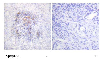 Immunohistochemistry (Formalin/PFA-fixed paraffin-embedded sections) - Anti-Aconitase 1 (phospho S138) antibody (ab63260)