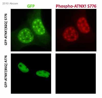 Immunocytochemistry/ Immunofluorescence - Anti-Ataxin 1 (phospho S776) antibody (ab63376)