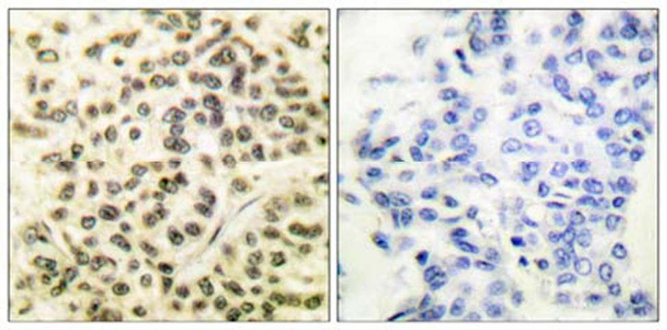 Immunohistochemistry (Formalin/PFA-fixed paraffin-embedded sections) - Anti-MAPKAP Kinase 2  (phospho T334) antibody (ab63378)