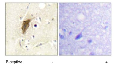Immunohistochemistry (Formalin/PFA-fixed paraffin-embedded sections) - Anti-Mylc2b (phospho S18) antibody (ab63479)