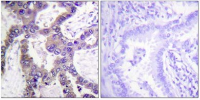 Immunohistochemistry (Formalin/PFA-fixed paraffin-embedded sections) - Anti-DUSP1 (phospho S359) antibody (ab63548)